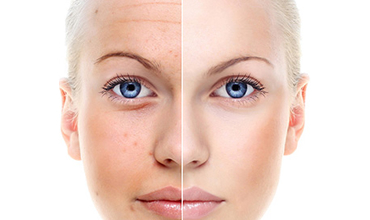 Chemical Peels - exfoliate and hydrate your skin. Innate Beauty - Cosmetic medicine and aesthetic procedures in Austin, Texas