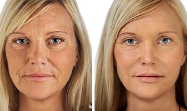 Dermal Fillers - Austin, Texas. Innate Beauty Medical Rejuvenation Center