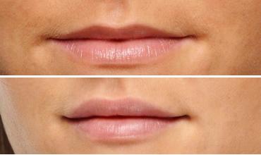 Dermal Fillers for Lips Austin, Texas Medical Spa