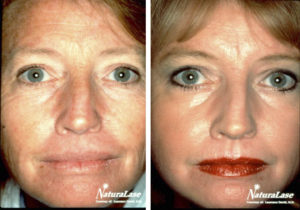 Care After Laser Treatment For Brown Spots