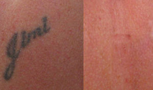 Enlighten Tattoo Removal - Innate Beauty